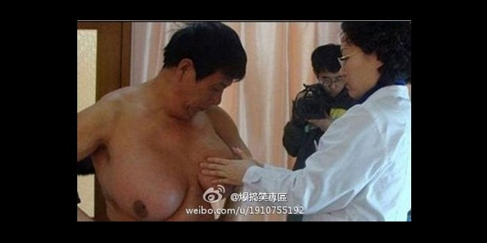 Man Accidentally Grows Huge Boobs While Treating His Baldness