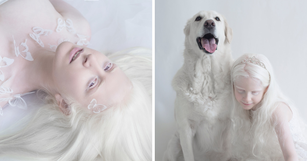 Capturing The Hypnotizing Beauty Of Albino People