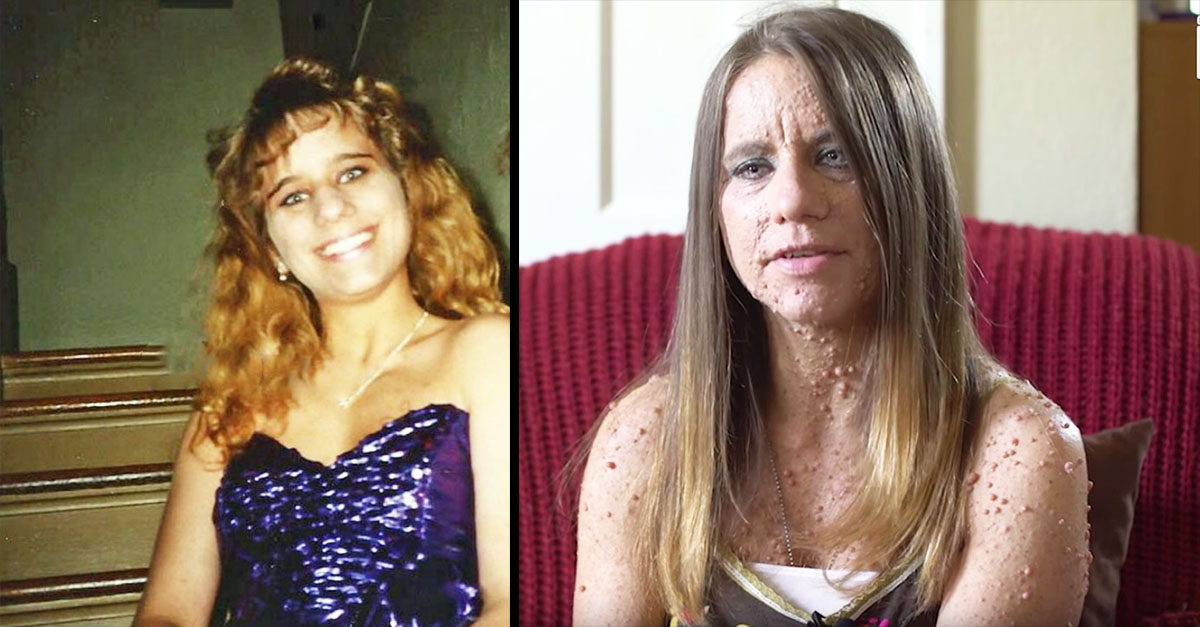 She Had A Happy, Normal Life, Then Her Body Became Covered In Small Bumps