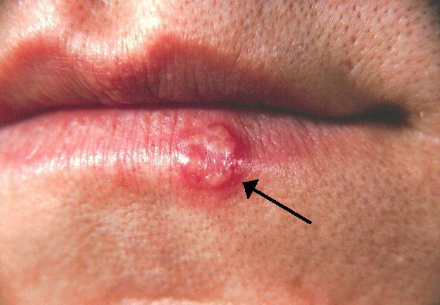 EVERYTHING YOU THINK YOU KNOW ABOUT HERPES IS WRONG