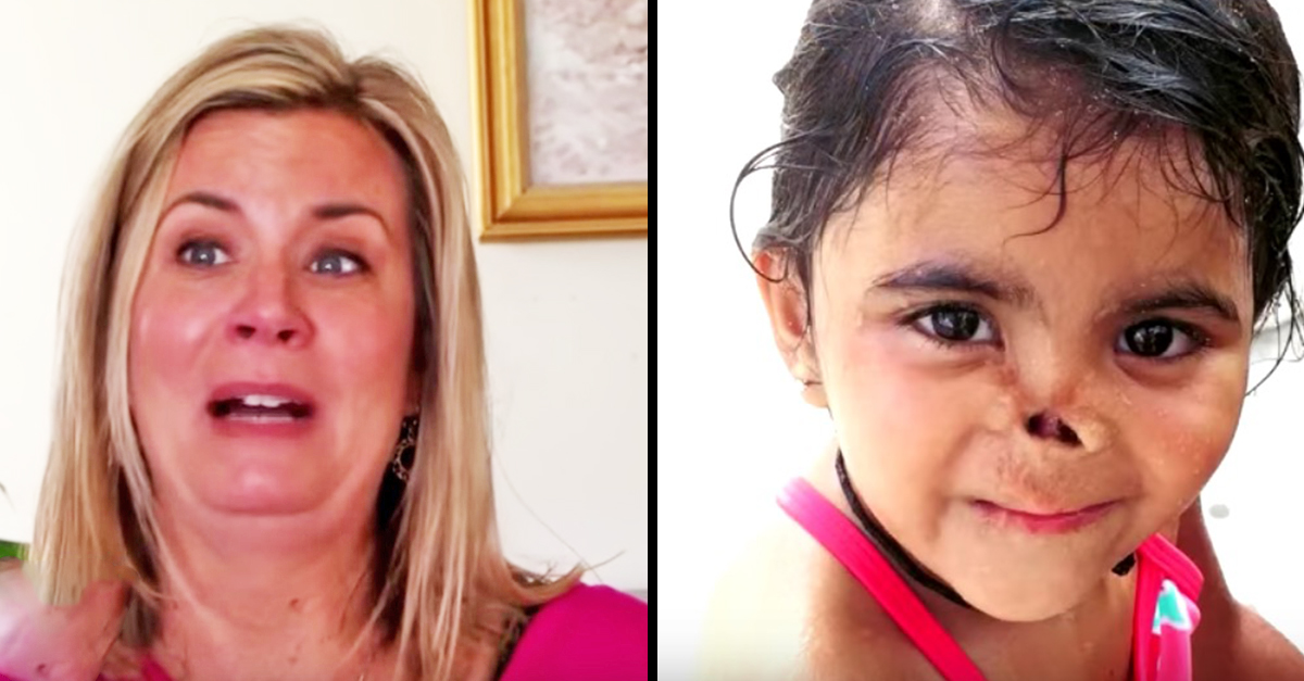 Mom Adopts Orphan With Nose Eaten Off By Animals. 3 Years Later, She Transforms
